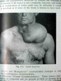 peripheral vascular diseases allen barker hines vintage medical book