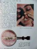 physical signs clinical surgery hamilton bailey vintage medical book